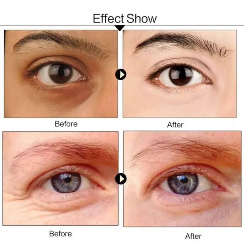 collagen-crystal-eye-mask
